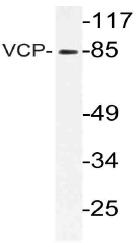 AP21142PU-N - TER ATPase / VCP