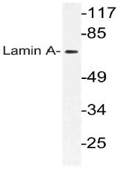 AP21143PU-N - Lamin-A/C (LMNA)