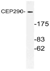 AP21146PU-N - CEP290