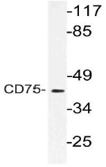 AP21150PU-N - CD75 / ST6GAL1
