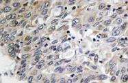AP21152PU-N - C1q C subunit