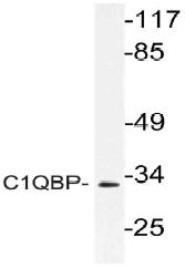 AP21154PU-N - C1QBP