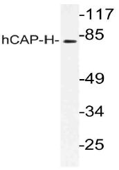AP21157PU-N - NCAPH