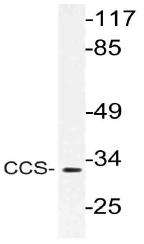AP21158PU-N - CCS / SOD4