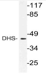 AP21160PU-N - Deoxyhypusine synthase (DHPS)