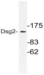 AP21161PU-N - Desmoglein-2