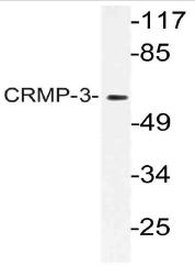 AP21162PU-N - DPYSL4 / CRMP3