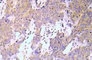 AP21046PU-N - RELA / NF-kB p65