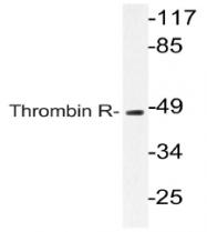AP21049PU-N - Thrombin receptor / F2R