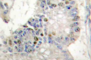 AP21050PU-N - Histone H1.0