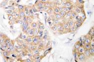 AP21055PU-N - CD213a1 / IL13RA1
