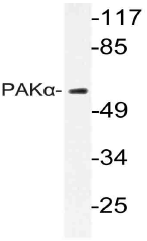AP21056PU-N - PAK1