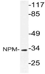 AP21057PU-N - Nucleophosmin