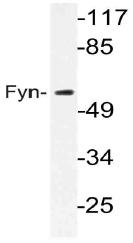 AP21058PU-N - FYN