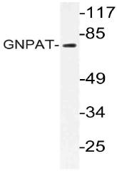 AP21060PU-N - GNPAT / DAPAT