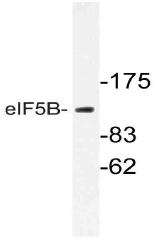 AP21063PU-N - EIF5B / IF2