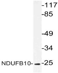 AP21066PU-N - NDUFB10