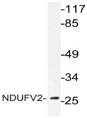 AP21067PU-N - NDUFV2