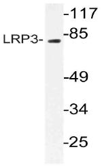 AP21071PU-N - LRP3