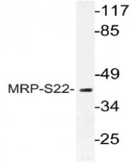 AP21073PU-N - MRPS22