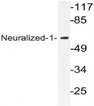 AP21079PU-N - NEURL