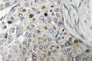 AP21082PU-N - TP53 / p53