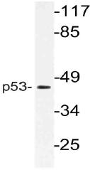 AP21105PU-N - TP53 / p53