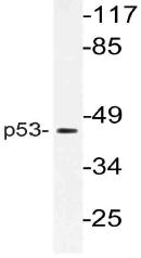 AP21106PU-N - TP53 / p53