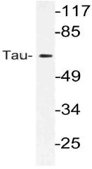 AP21109PU-N - MAPT / TAU