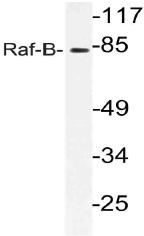 AP21110PU-N - B-Raf proto-oncogene