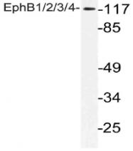 AP21112PU-N - EPHB1