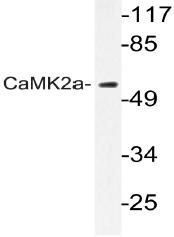 AP20970PU-N - CAMK2A
