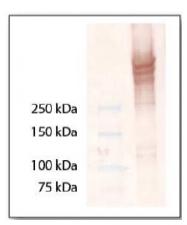 AP02111PU-S - Laminin beta 3 / Laminin-5