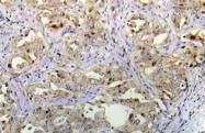 AP20988PU-N - TP53 / p53