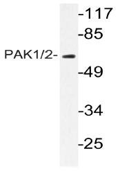 AP20990PU-N - PAK1/PAK2