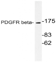 AP20991PU-N - CD140b / PDGFRB