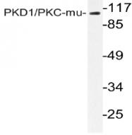 AP20992PU-N - PRKD1