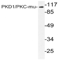 AP20993PU-N - PRKD1