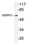 AP20963PU-N - PRKAA1