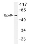 AP20227PU-N - Erythropoietin receptor