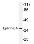 AP20226PU-N - Ephrin-B1