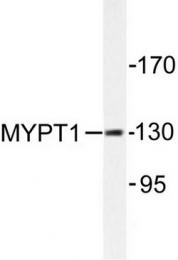 AP06544PU-N - PPP1R12A / MYPT1
