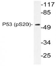 AP20897PU-N - TP53 / p53