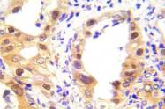 AP20898PU-N - TP53 / p53