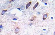 AP20900PU-N - CD140b / PDGFRB