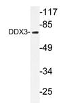 AP20221PU-N - DDX3X