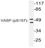 AP20814PU-N - VASP