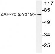 AP20820PU-N - ZAP70