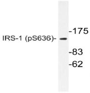 AP20831PU-N - IRS1