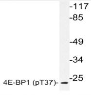 AP20834PU-N - EIF4EBP1 / 4E-BP1